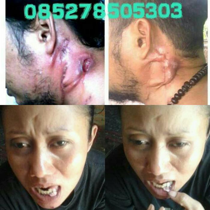 Kelenjar Getah Bening Dan Kanker Mulut Sembuh Dengan Obat ...